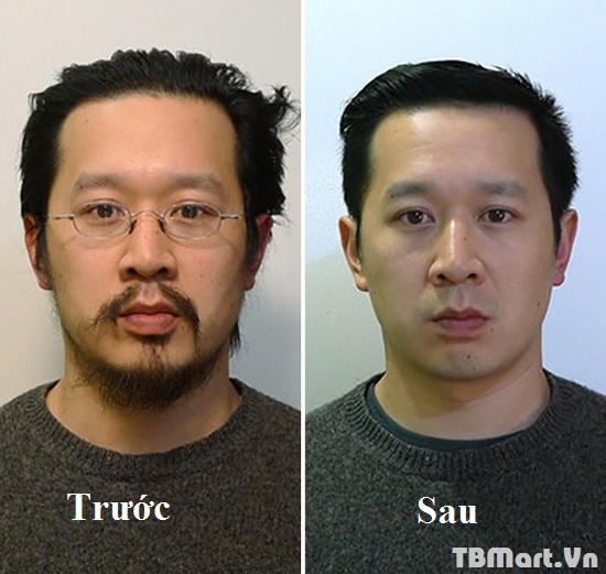 Khách Hàng Trước và Sau khi sử Dụng Máy Cạo Râu 3 trong 1 Boteng Hàn Quốc của TB MART.